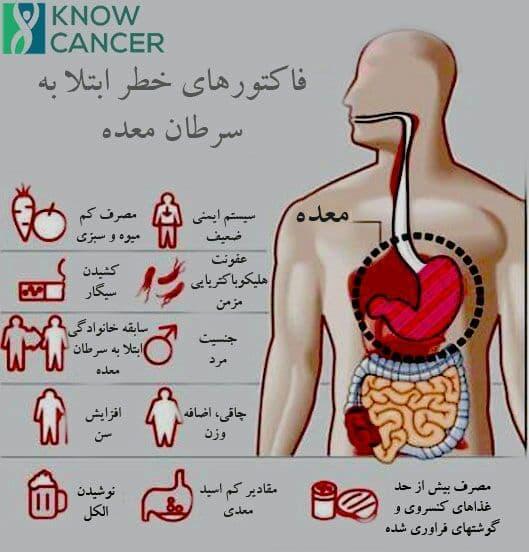 stomach cancer risk factor